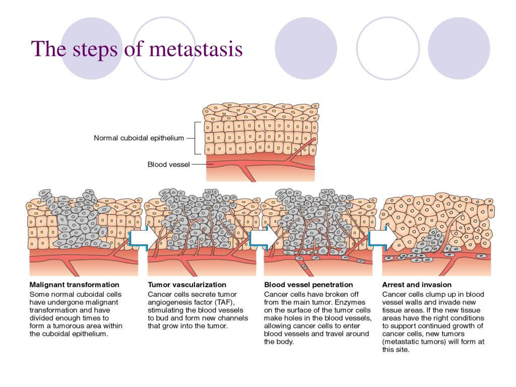 The steps of metastasis