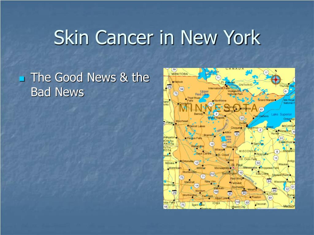 Skin Cancer in New York