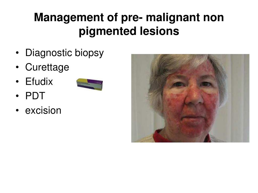 Management of pre- malignant non pigmented lesions