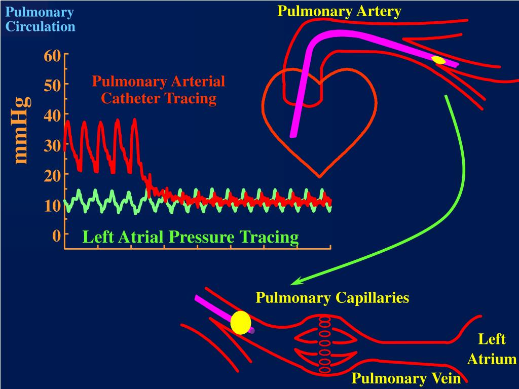 Pulmonary Artery