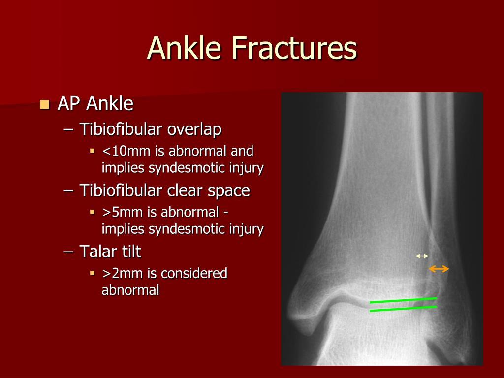 AP Ankle