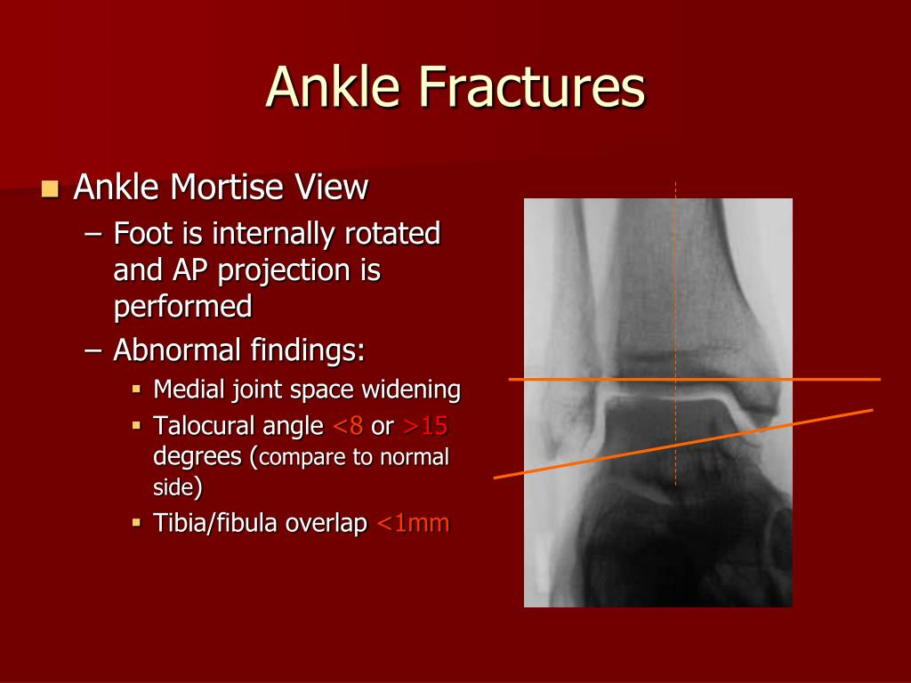 Ankle Mortise View