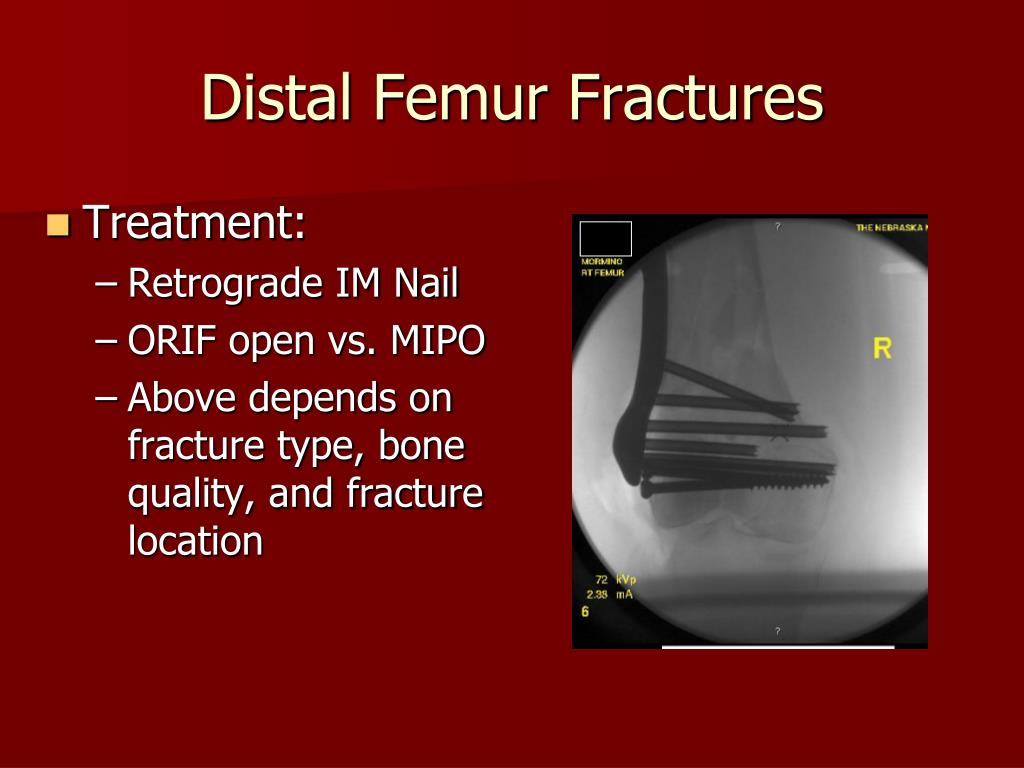 Distal Femur Fractures
