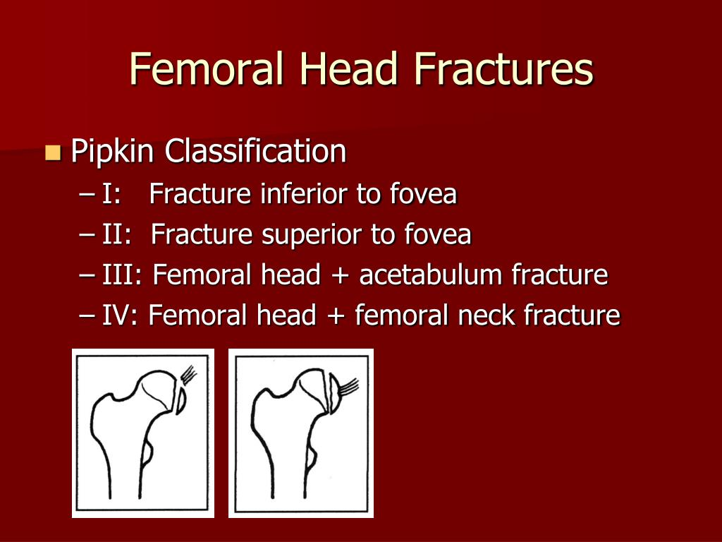 Femoral Head Fractures