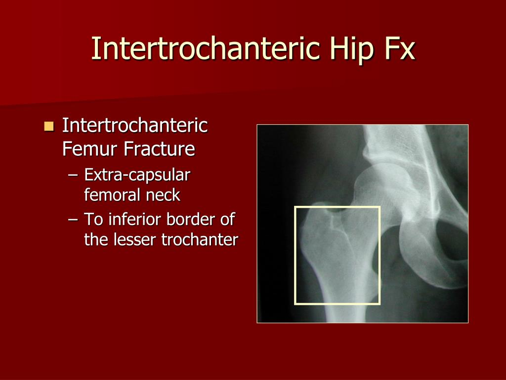 Intertrochanteric Femur Fracture