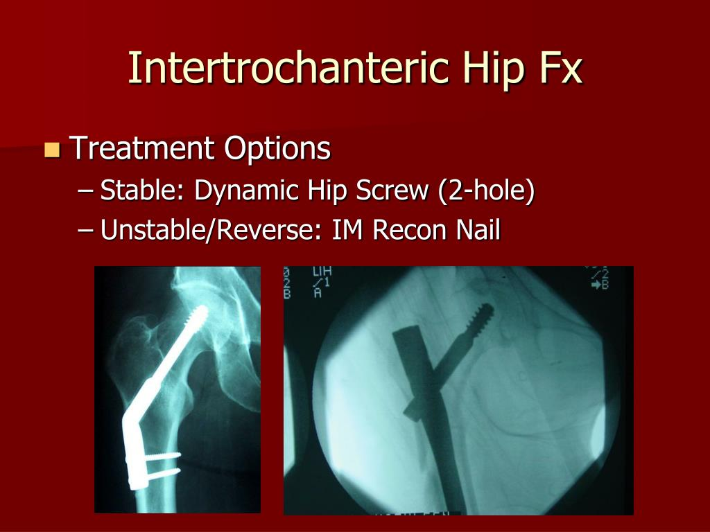 Intertrochanteric Hip Fx