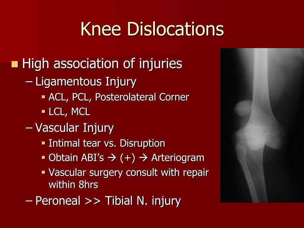 Knee Dislocations