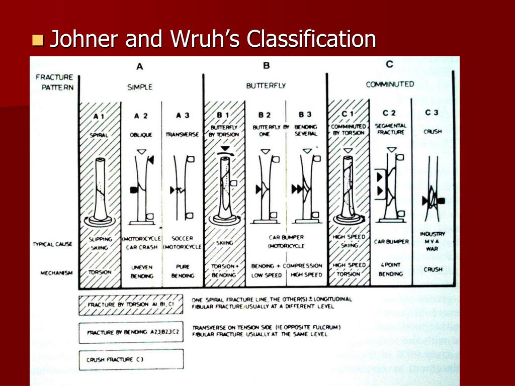 Johner and Wruh's Classification
