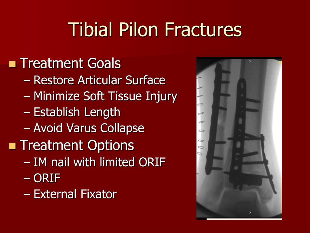 Tibial Pilon Fractures