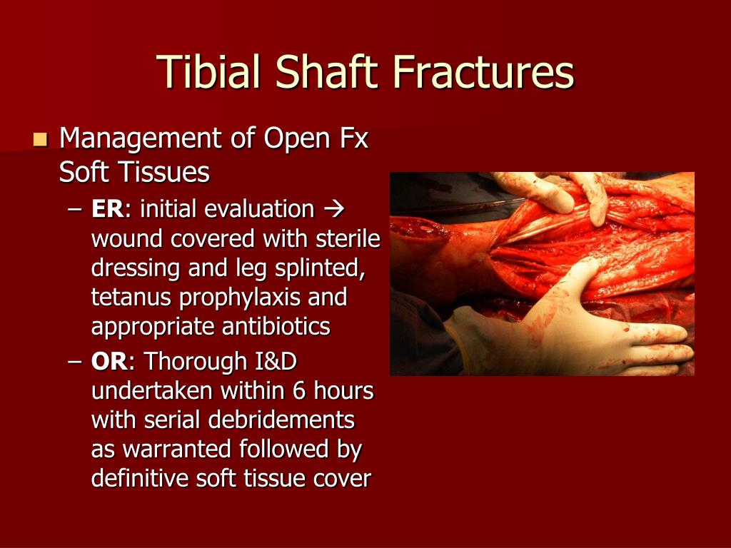 Management of Open Fx Soft Tissues