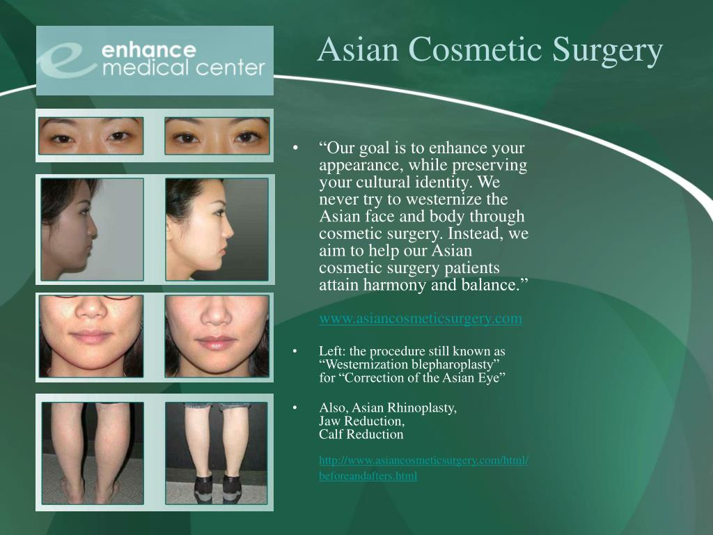 Asian Cosmetic Surgery