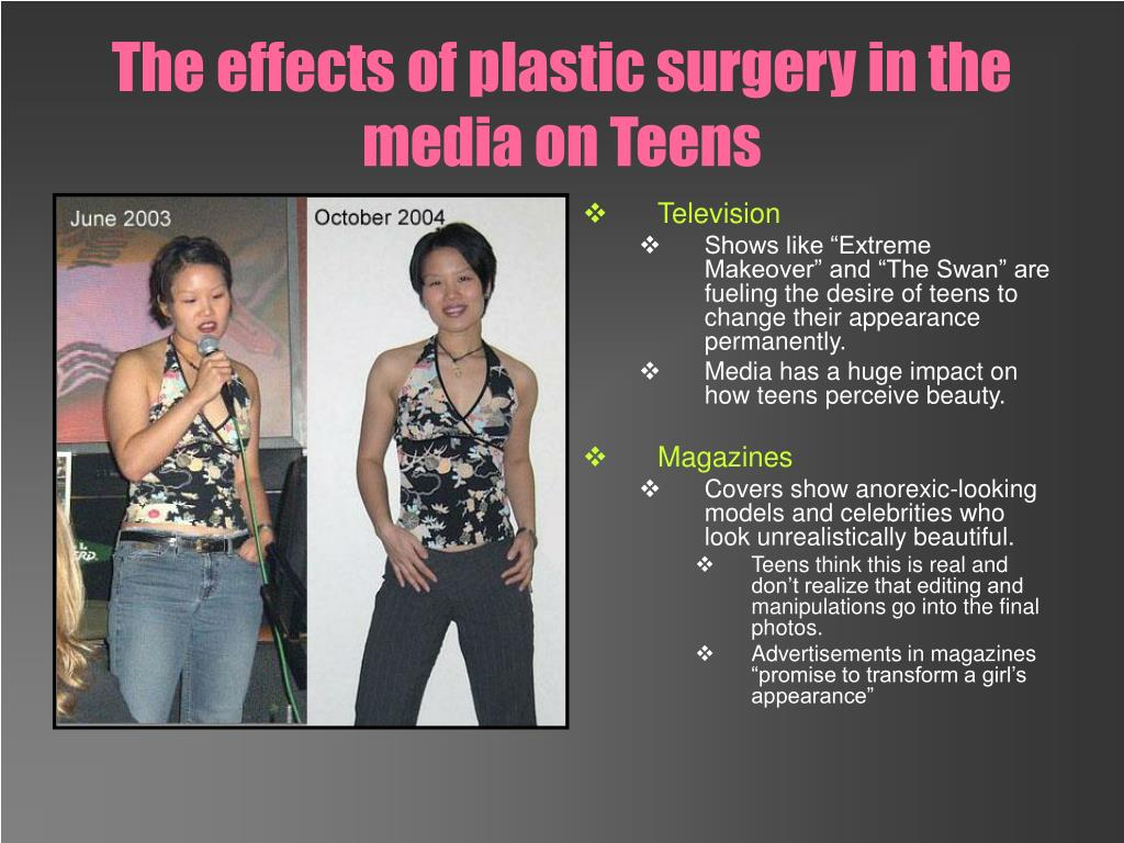 The effects of plastic surgery in the media on Teens