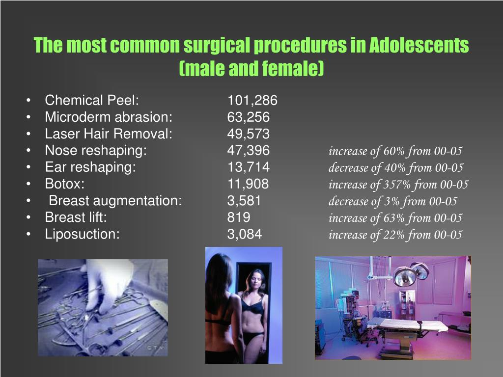 The most common surgical procedures in Adolescents (male and female)