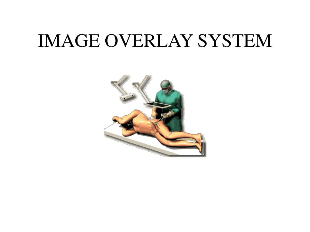 IMAGE OVERLAY SYSTEM