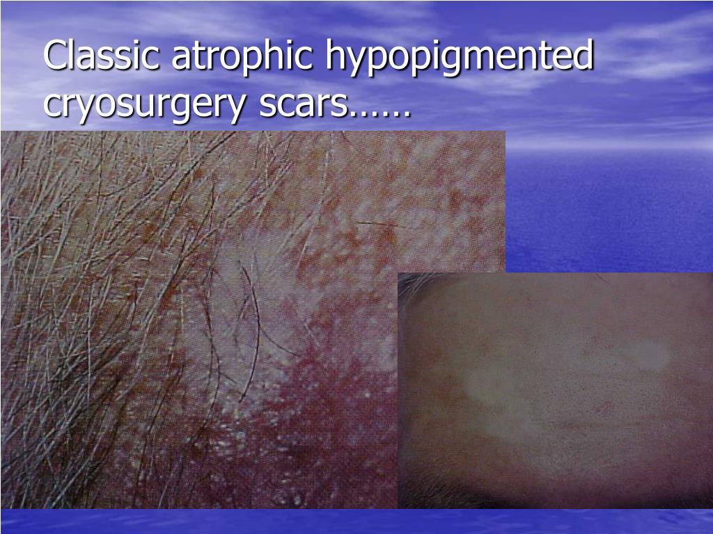 Classic atrophic hypopigmented cryosurgery scars……