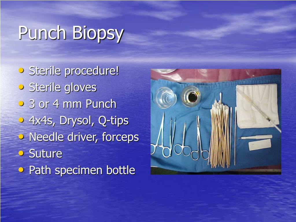 Punch Biopsy