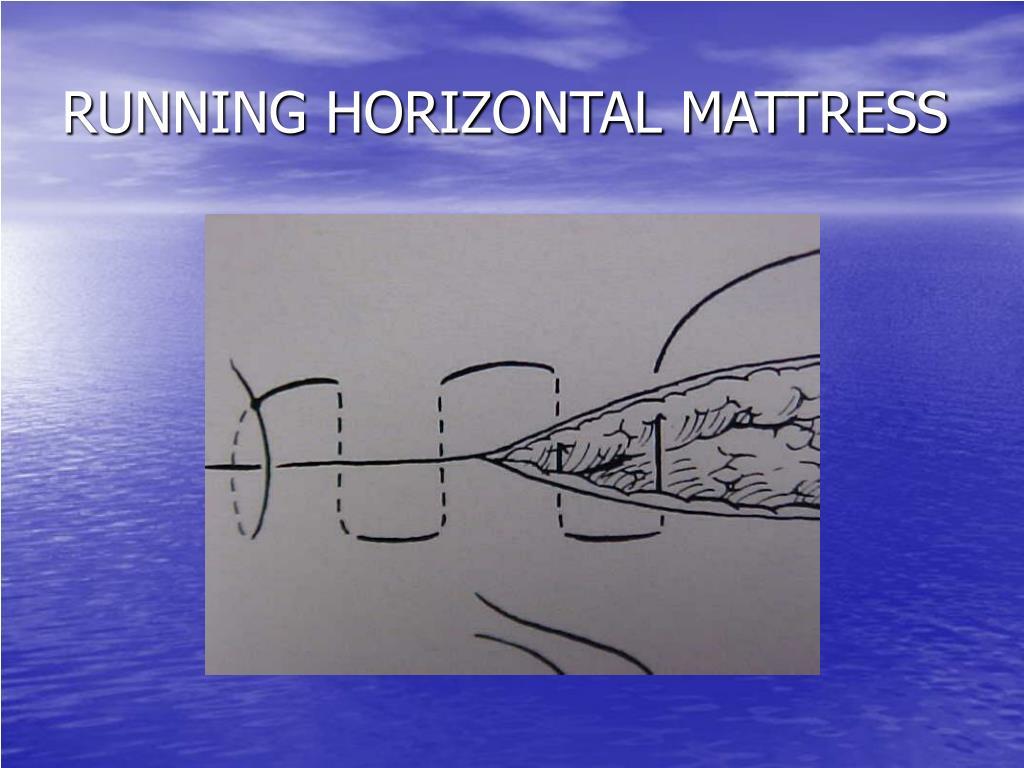 RUNNING HORIZONTAL MATTRESS