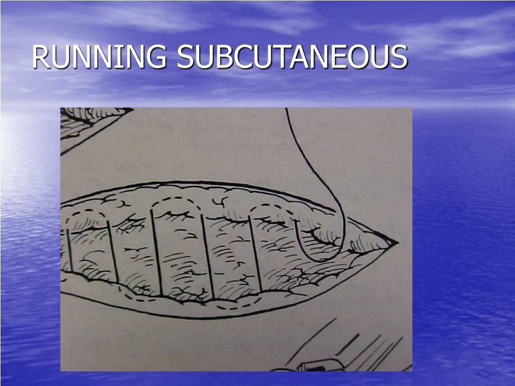 RUNNING SUBCUTANEOUS