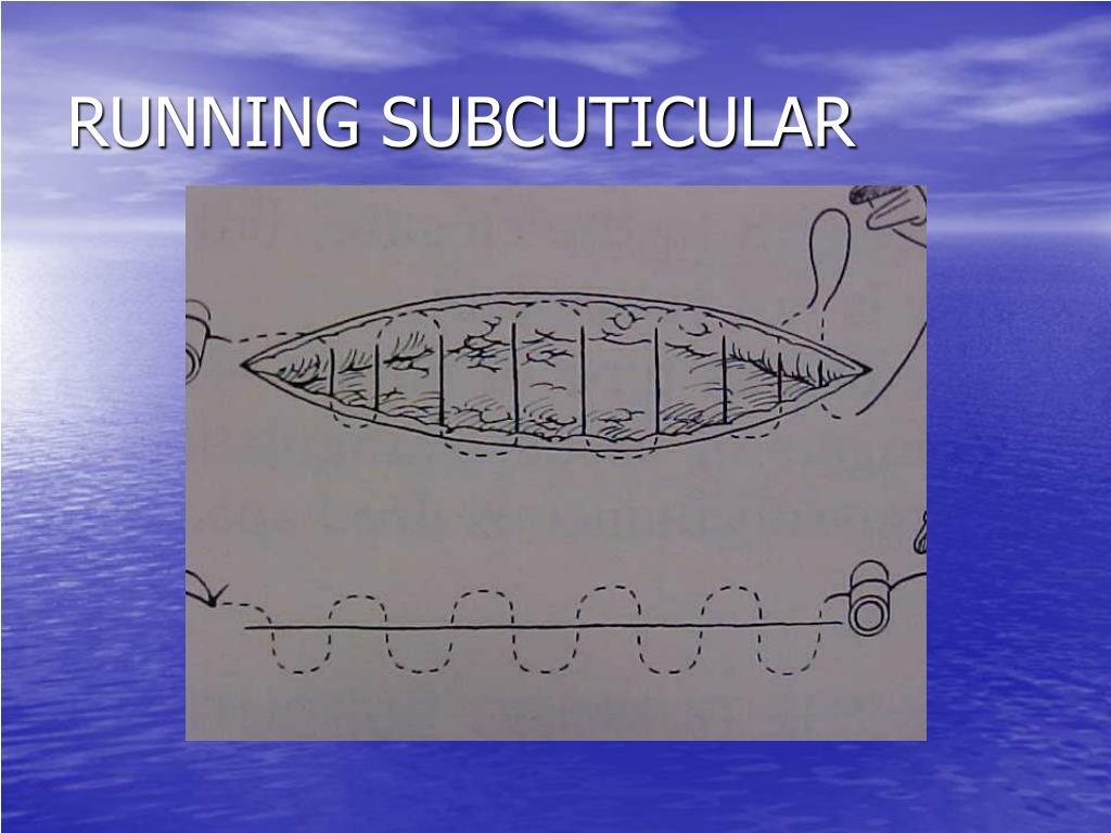 RUNNING SUBCUTICULAR