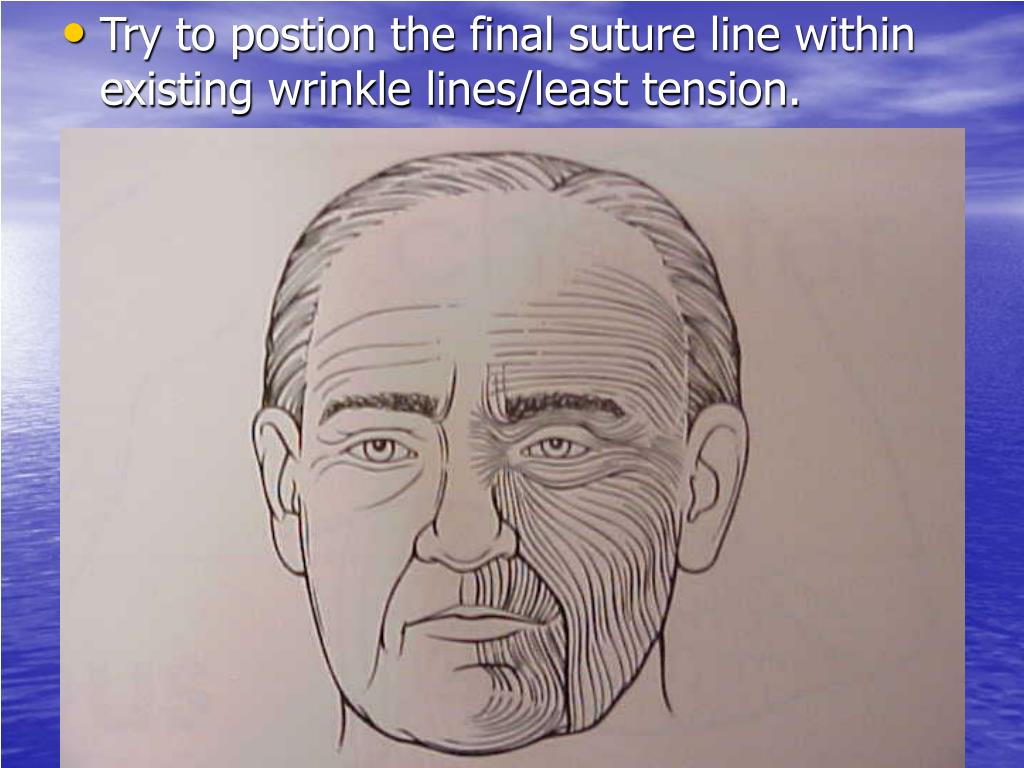 Try to postion the final suture line within existing wrinkle lines/least tension.