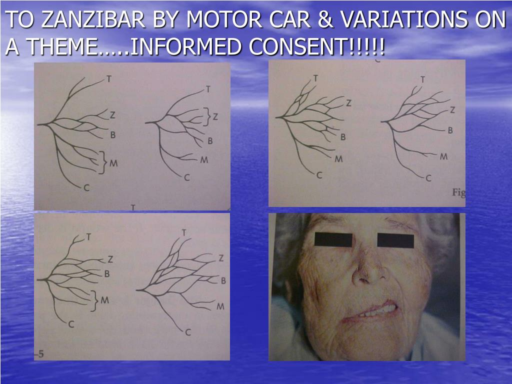 TO ZANZIBAR BY MOTOR CAR & VARIATIONS ON A THEME…..INFORMED CONSENT!!!!!