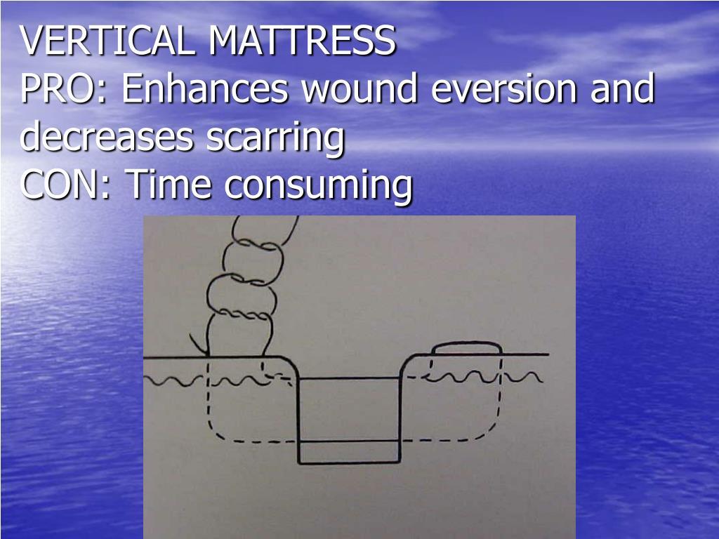VERTICAL MATTRESS