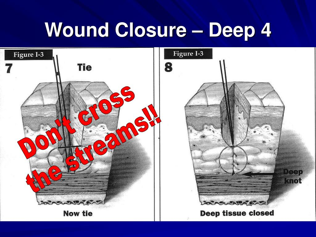Wound Closure – Deep 4