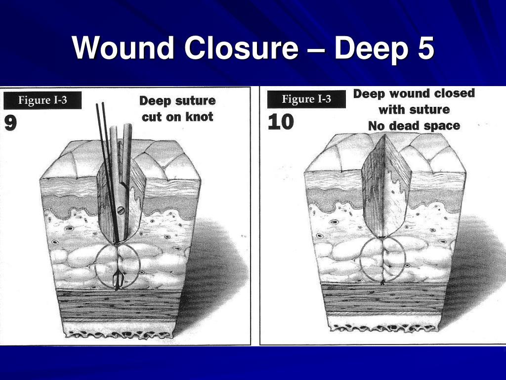 Wound Closure – Deep 5