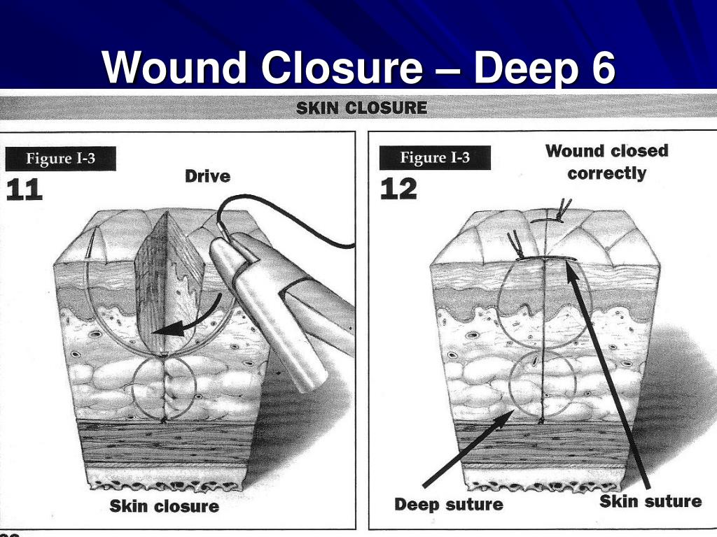 Wound Closure – Deep 6