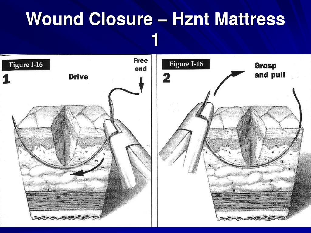 Wound Closure – Hznt Mattress 1
