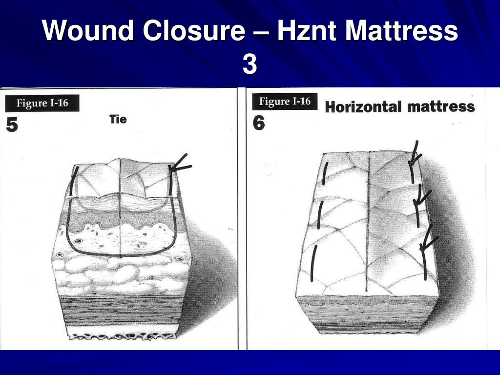 Wound Closure – Hznt Mattress 3