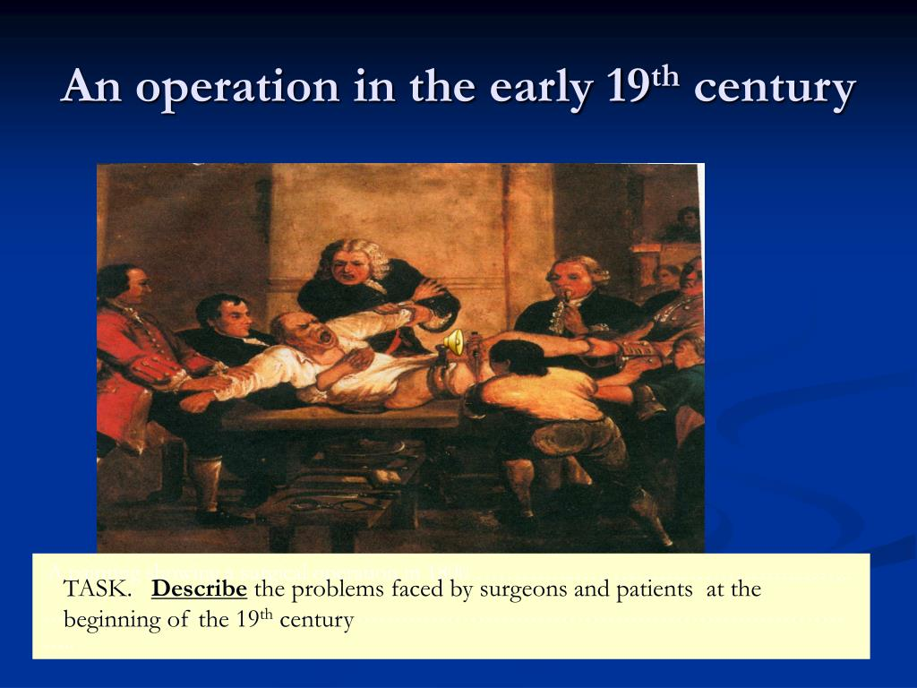 An operation in the early 19