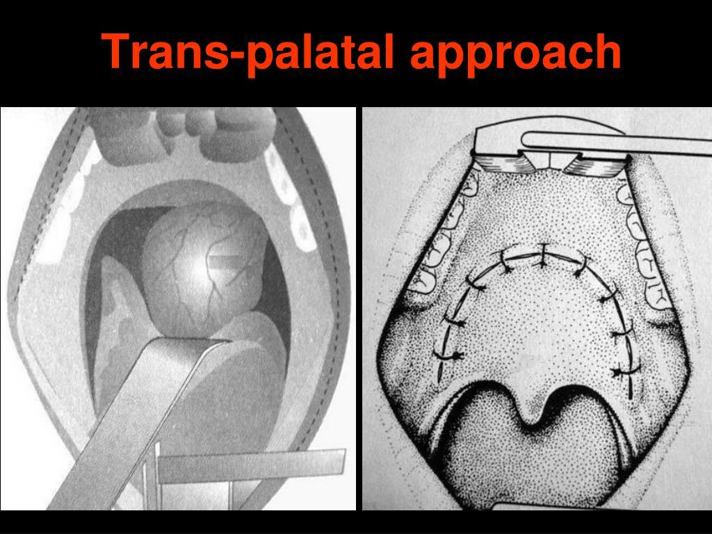 Trans-palatal approach