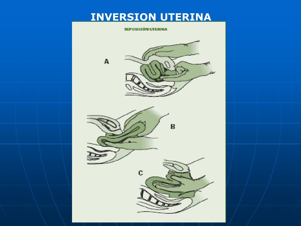 INVERSION UTERINA