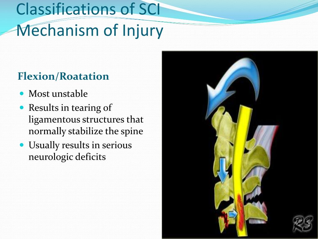 Classifications of SCI