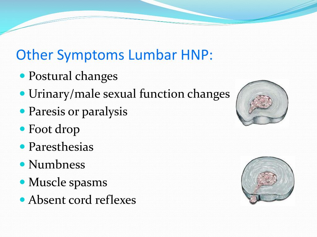 Other Symptoms Lumbar HNP: