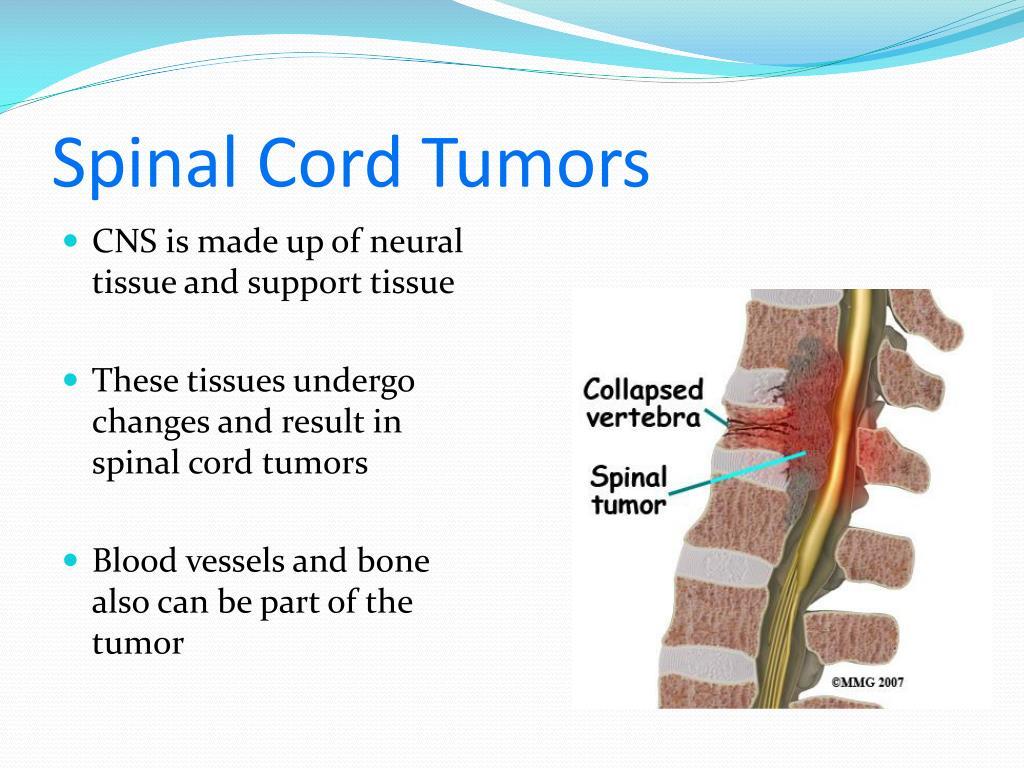 Spinal Cord Tumors