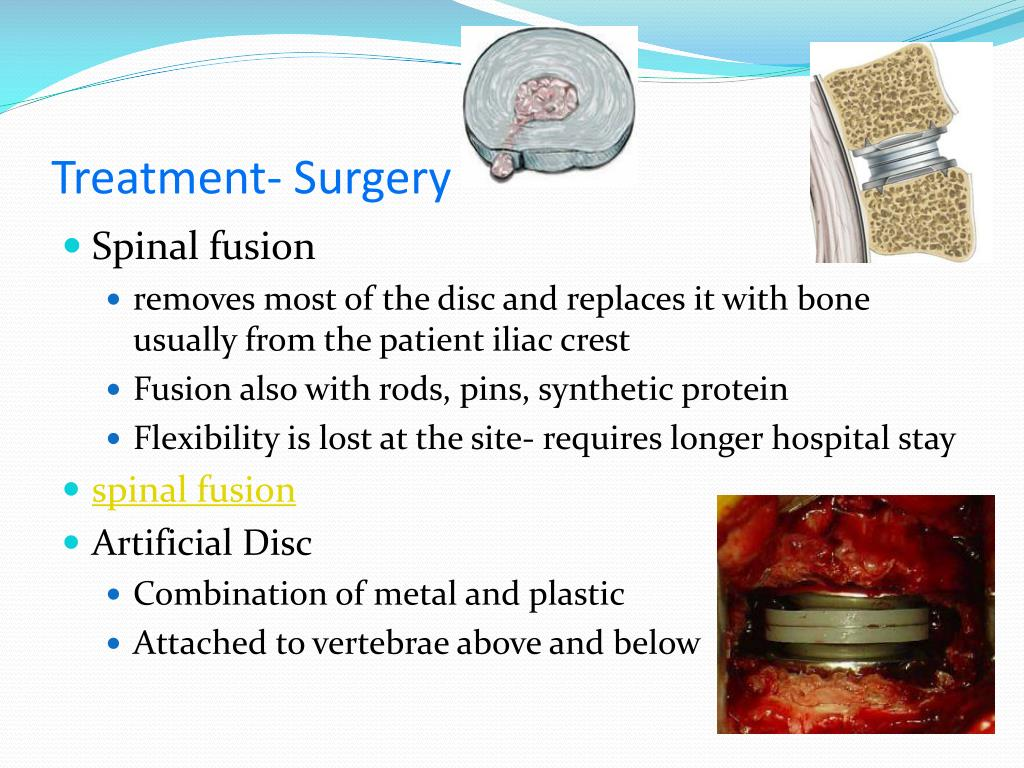 Treatment- Surgery
