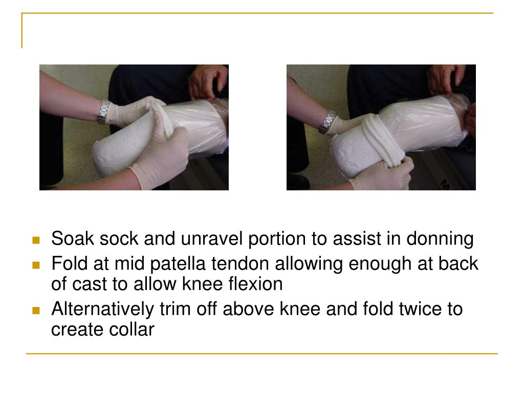 Soak sock and unravel portion to assist in donning