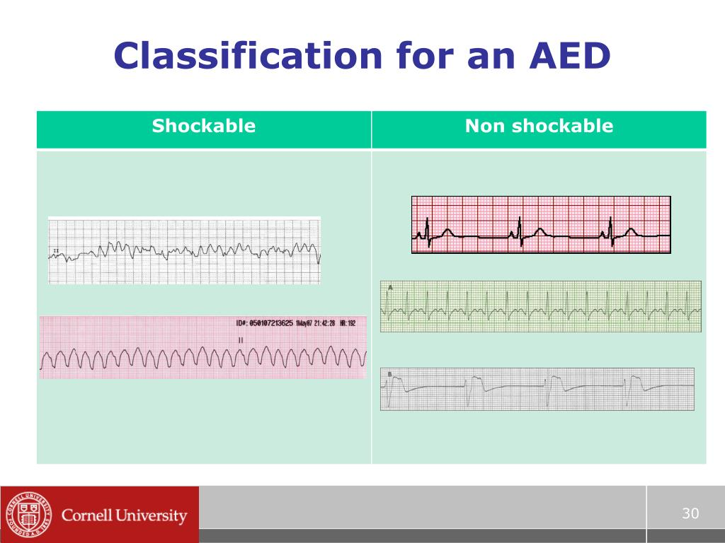 Classification for an AED