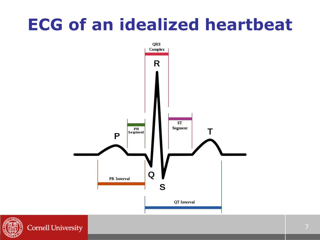 ECG of an idealized heartbeat