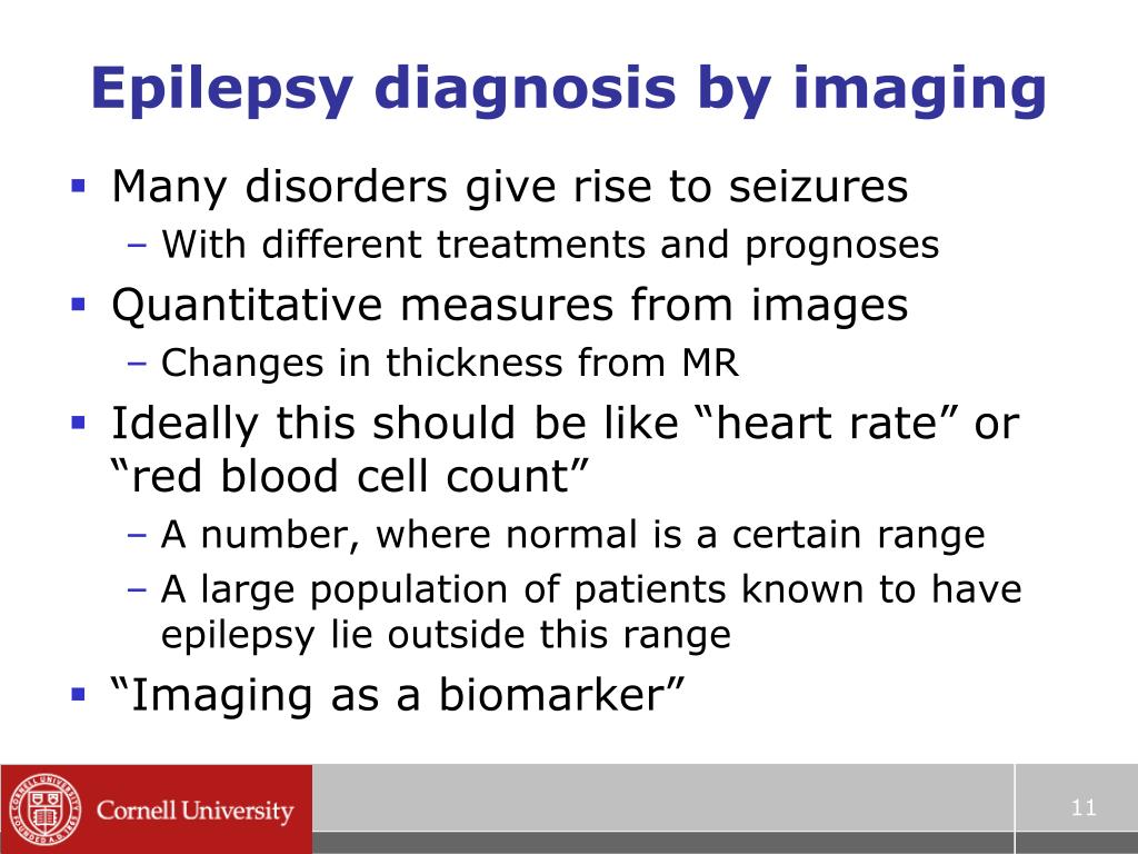 Epilepsy diagnosis by imaging