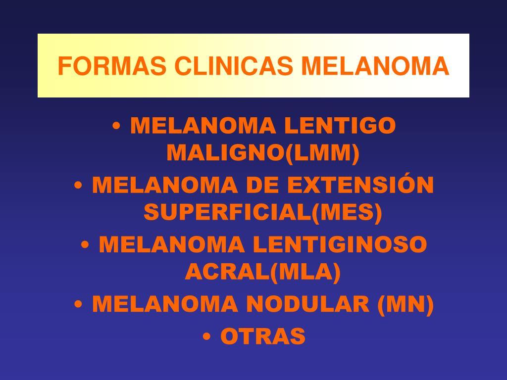 FORMAS CLINICAS MELANOMA