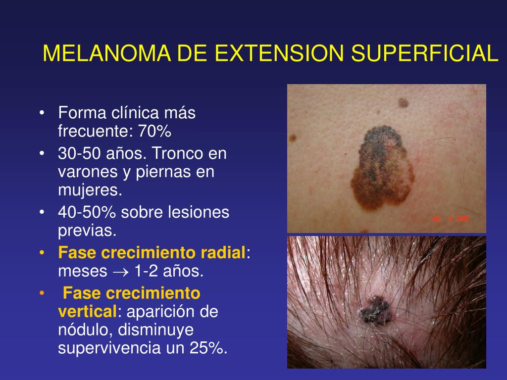 MELANOMA DE EXTENSION SUPERFICIAL