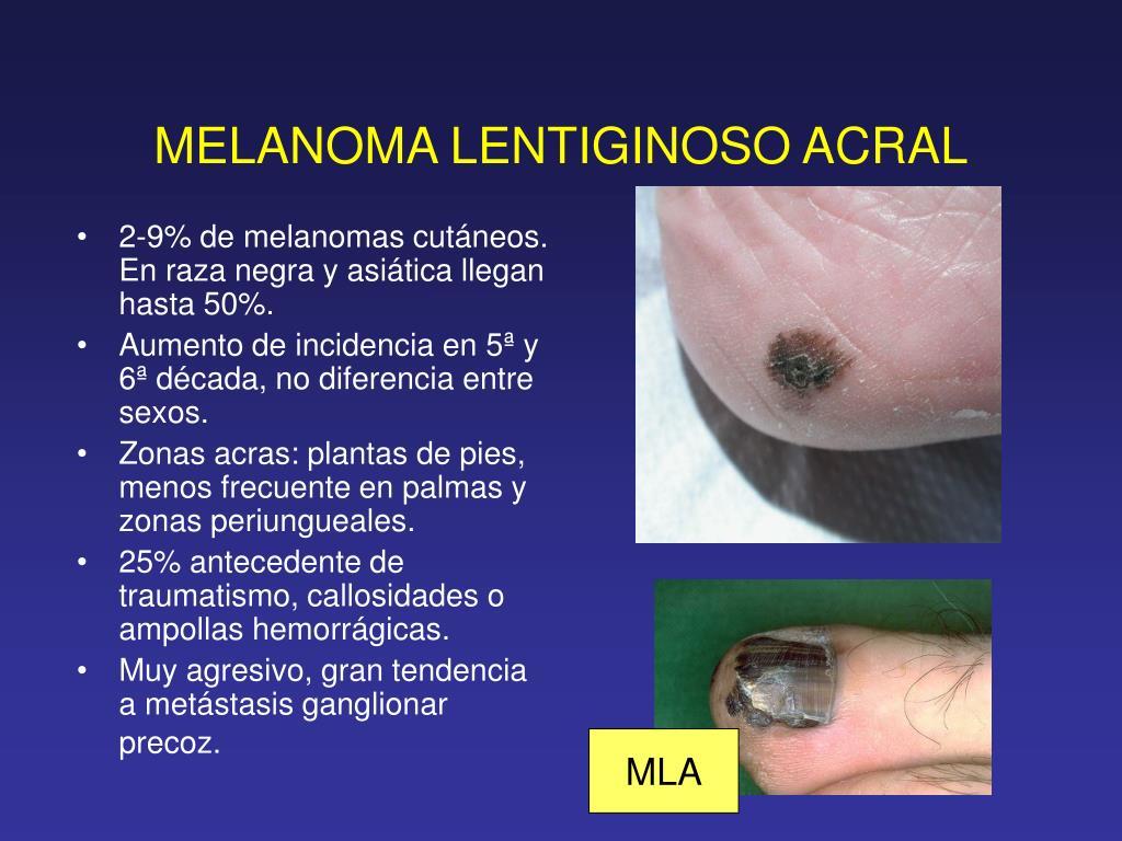 MELANOMA LENTIGINOSO ACRAL