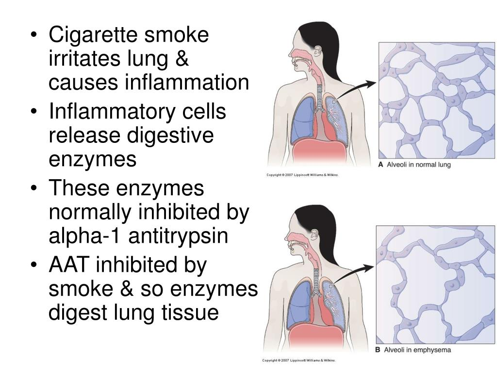 Cigarette smoke irritates lung & causes inflammation