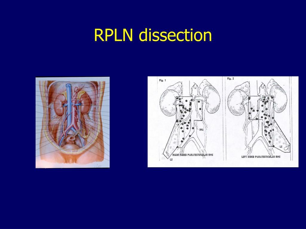 RPLN dissection