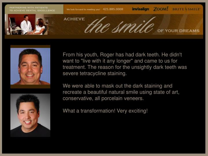 "From his youth, Roger has had dark teeth. He didn't want to ""live with it any longer"" and came to us for treatment. The reason for the unsightly dark teeth was severe tetracycline staining."