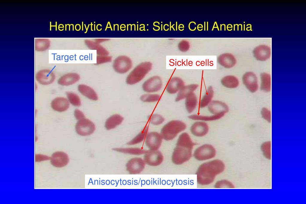 Hemolytic Anemia: Sickle Cell Anemia