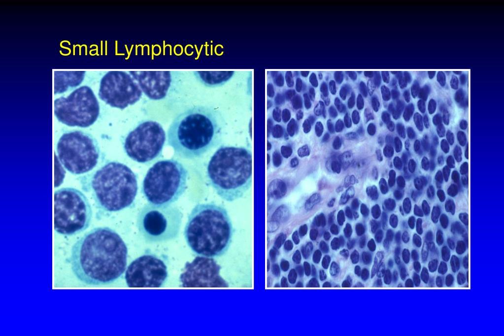 Small Lymphocytic